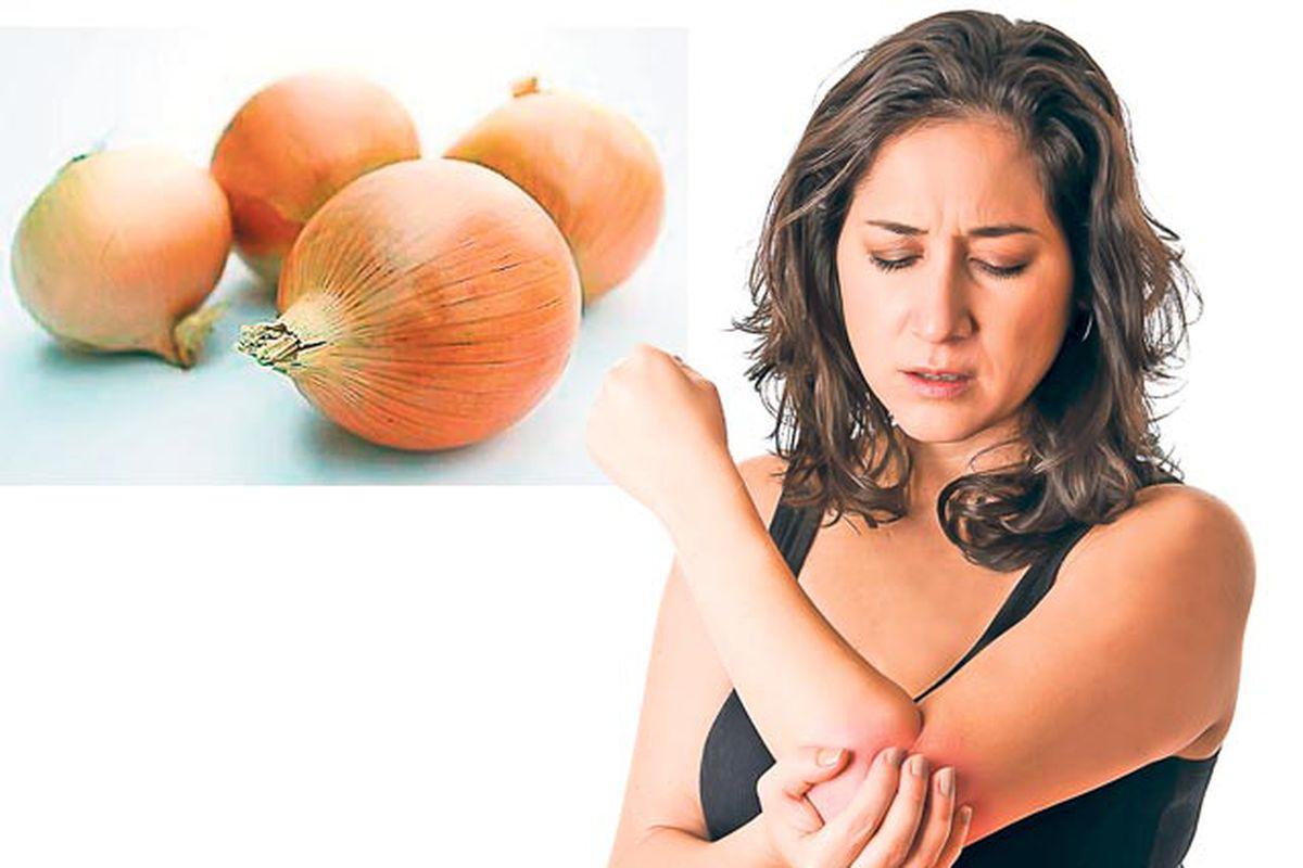 ceapă în tratamentul artrozei)