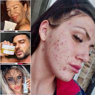 """""""Fața mea a început să se descompună"""". Un fals dermatolog e acuzat că a vândut produse toxice pentru ten, promovate de vedete precum Dorian Popa și Gina Pistol"""