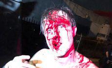 Actorul David Arquette, bătut măr într-un meci de wrestling. A ajuns la spital, la un pas de moarte, cu răni grave. Scene interzise minorilor | FOTO&VIDEO