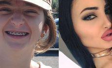 FOTO | O tânără hărțuită în adolescență pentru modul în care arăta este de nerecunoscut! Cum și-a modificat întregul corp