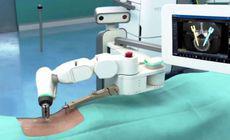 Prima operație cu cel mai performant robot de neurochirurgie, la Iași. Cum acționează Mazor X