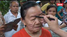 Boală misterioasă! O femeie a îmbătrânit 50 de ani în câteva zile!