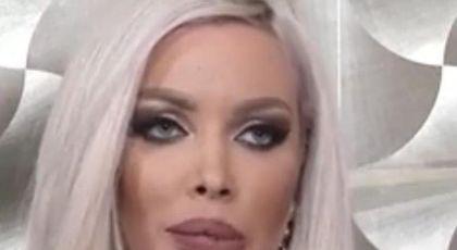 Loredana Chivu, accident la estetician? Cum arată buzele ei
