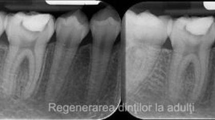 Descoperire uluitoare în medicină. Un medicamant uzual poate regenera dinții