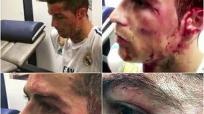 VIDEO și FOTO Imagini-șoc din vestiarul lui Real Madrid: Ronaldo, cu o rană adâncă și sângele șiroind pe față + Cum a apărut azi la antrenament