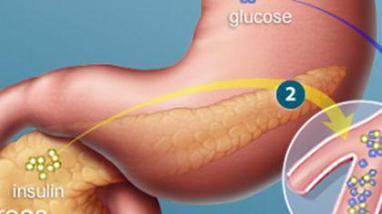 Alimentația dezechilibrată, unul din factorii principali de risc în producerea CANCERULUI PANCREATIC