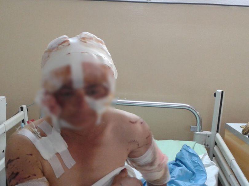 Femeie mutilată pe viaţă de câini! Uite cum arată! FOTO