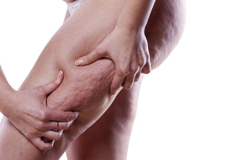 EXCLUSIV/ Cum tratăm celulita acasă.Medicul estetician Adina Alberts are soluția